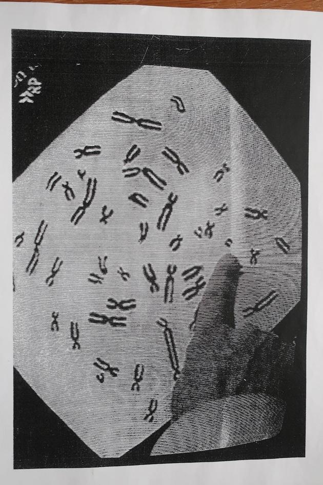 EMF-straling beschadigt DNA