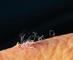 Morgellons uit huid